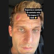 Rafael Moura posta foto de 'galo' na cabeça após pênalti não dado para Botafogo e ironiza