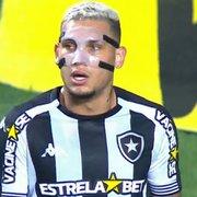 Cruzeiro x Botafogo: Rafael Navarro atua com proteção no rosto após levar chute de zagueiro do CRB