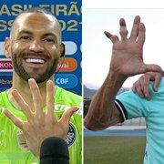 Goleiro do Palmeiras, Weverton cita Manga, ídolo do Botafogo, ao mostrar dedos tortos: 'Será que um dia vão ficar assim também?'